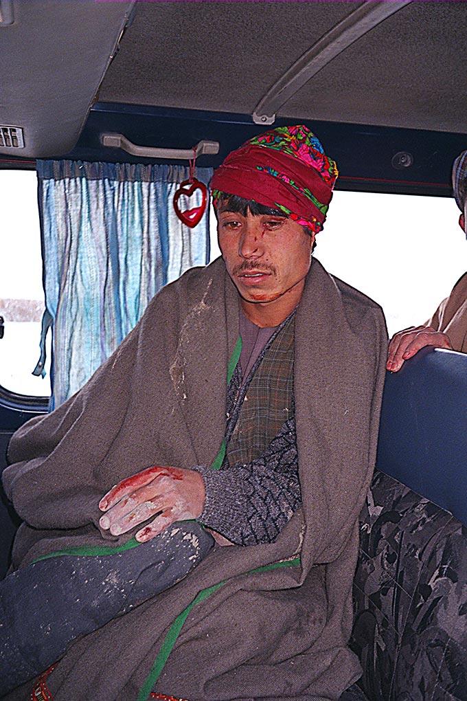 Man injured in Balkh incident