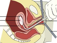 A diagram of a vacuum aspiration abortion procedure at 8 weeks gestation, from Wikipedia